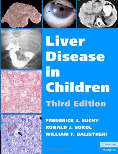 Liver Disease in Children 3