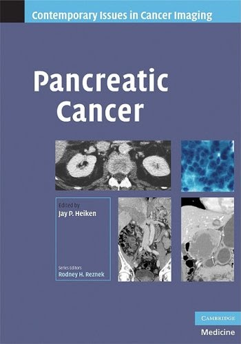 Pancreatic cancer pdf download free 2