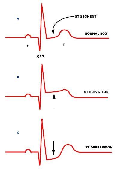 ECG MADE EASY POWERPOINT PRESENTATIONS 4