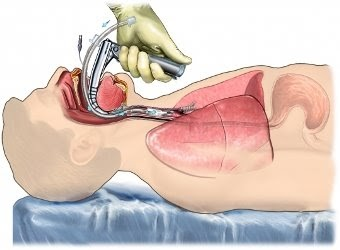 ENDOTRACHEAL INTUBATION VIDEO FREE DOWNLOAD 1