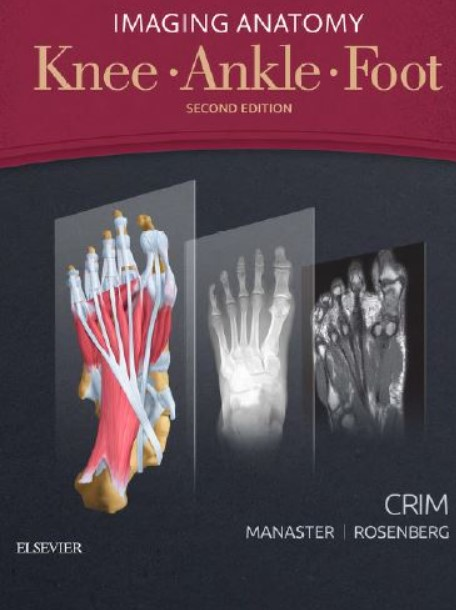 PDF Download Imaging Anatomy: Knee, Ankle, Foot 2nd Edition Free