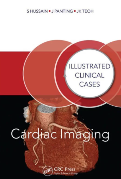 Download Cardiac Imaging: Illustrated Clinical Cases 1st Edition PDF Free
